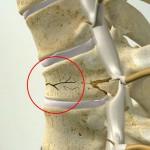 Как лечить позвоночник в случае перелома