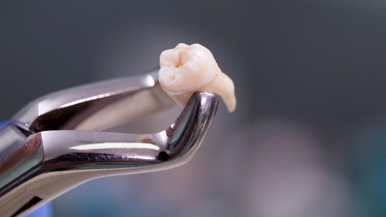 К удалению зуба следует подготовиться